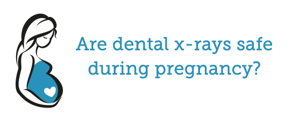 Are dental x-rays safe for women during pregnancy?