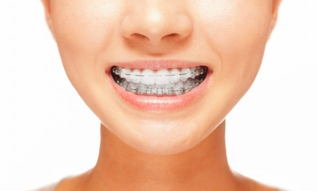 Brace Yourself For Better Oral Health
