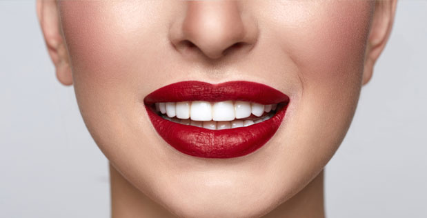The Glamourous Origins of Dental Veneers